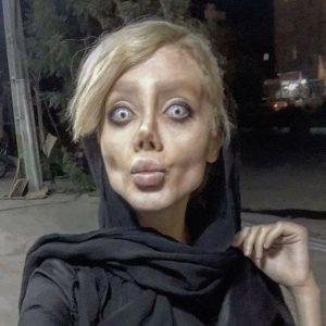 الفتاة الايرانية بعد التجميل