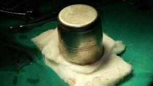 الكوب المعدني الذي أخرج من جسم المريض