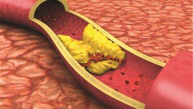 ارتفاع الدهون الثلاثية في الدم