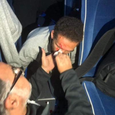 صورة.. إصابة هشام محمد لاعب الأهلي في هجوم جمهور الترجي على حافلة الفريق