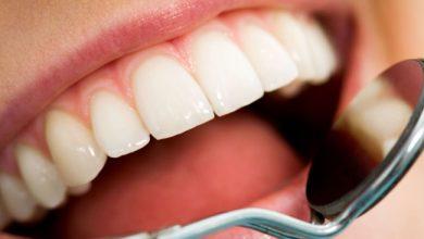 5 أطعمة غير سكرية تسبب تسوس الأسنان