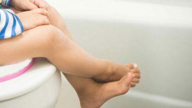 وصفة طبيعية لعلاج امساك الاطفال