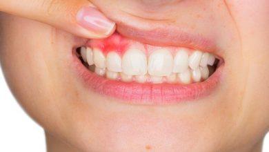 وصفة طبيعية لعلاج خراج الأسنان