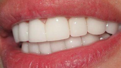 عادات يومية تجعلك تفقد أسنانك .. أحذرها