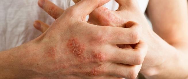 وصفة طبيعية لعلاج الإكزيما