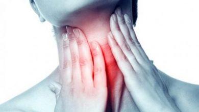 ادوية التهاب الحلق