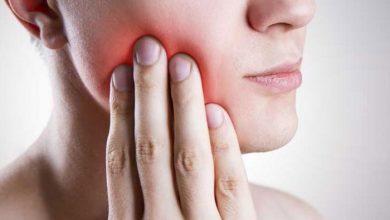 مضاد حيوي لعلاج خراج الاسنان