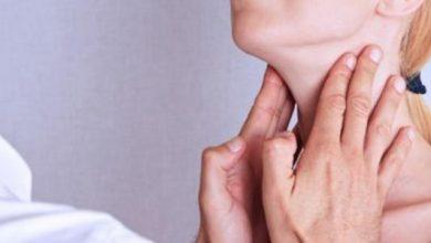 مضاد حيوي لعلاج صديد اللوز